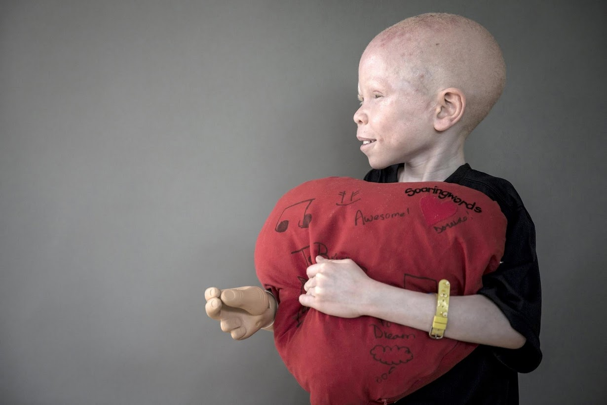Охота на альбиносов 11