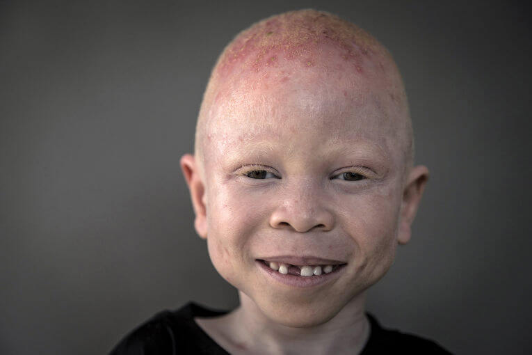 Охота на альбиносов 5