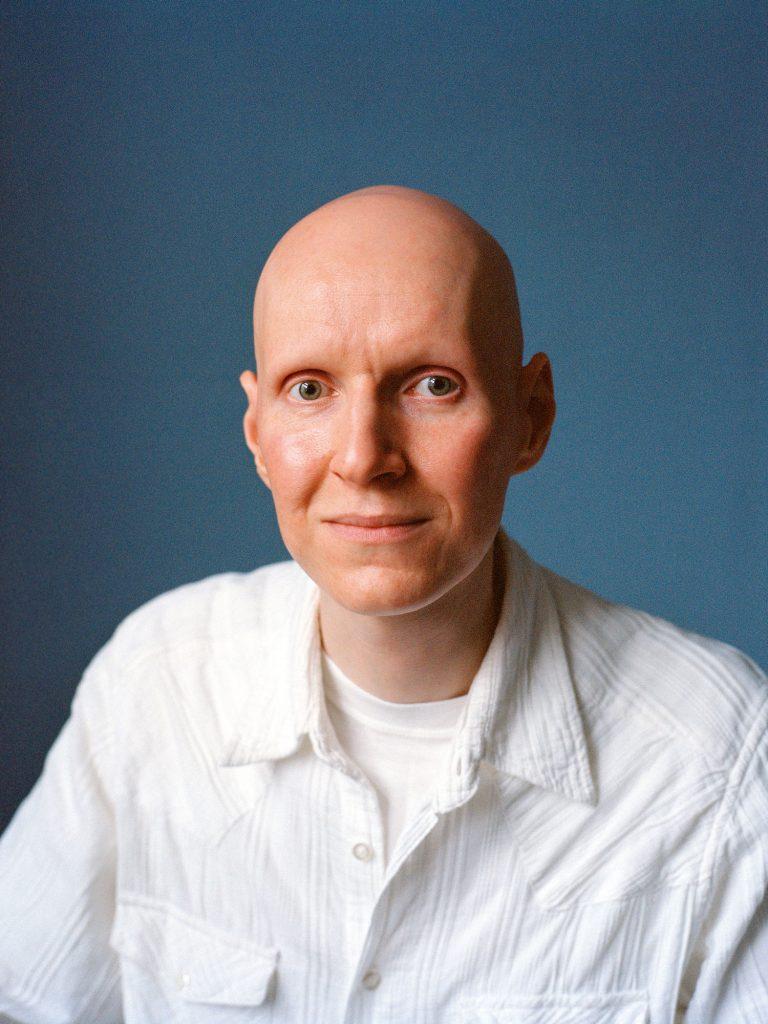 Тобиас потеря волос лица