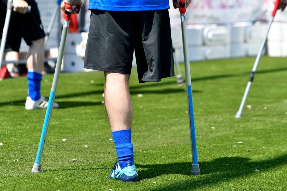 Каково это – играть в футбол без руки и ноги