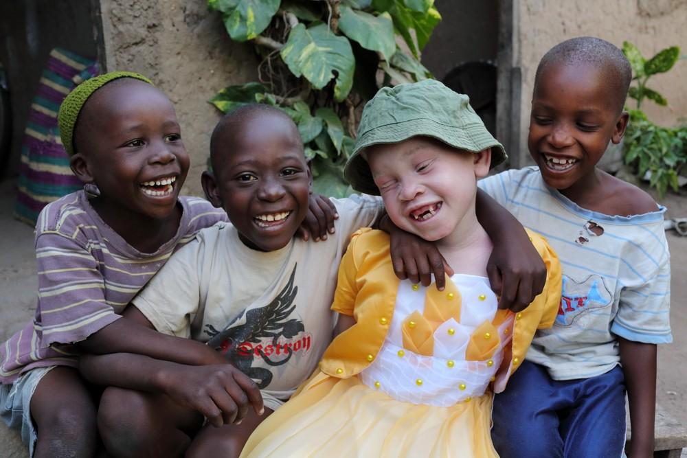 письма из Африки альбиносы люди с альбинизмом убийства Малави Африка ООН