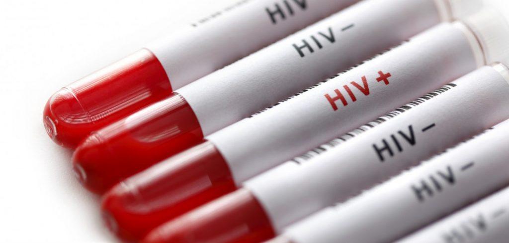 ВИЧ удален