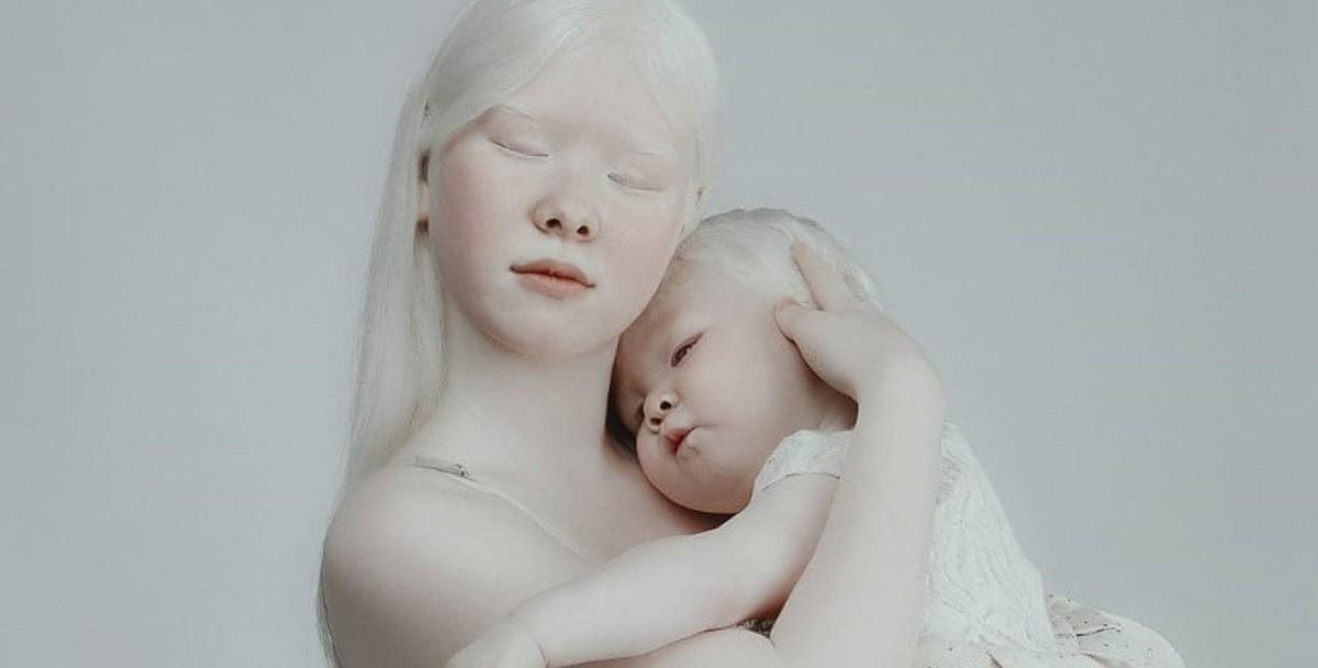 Девочки-альбиноски из Актау стали героинями соцсетей