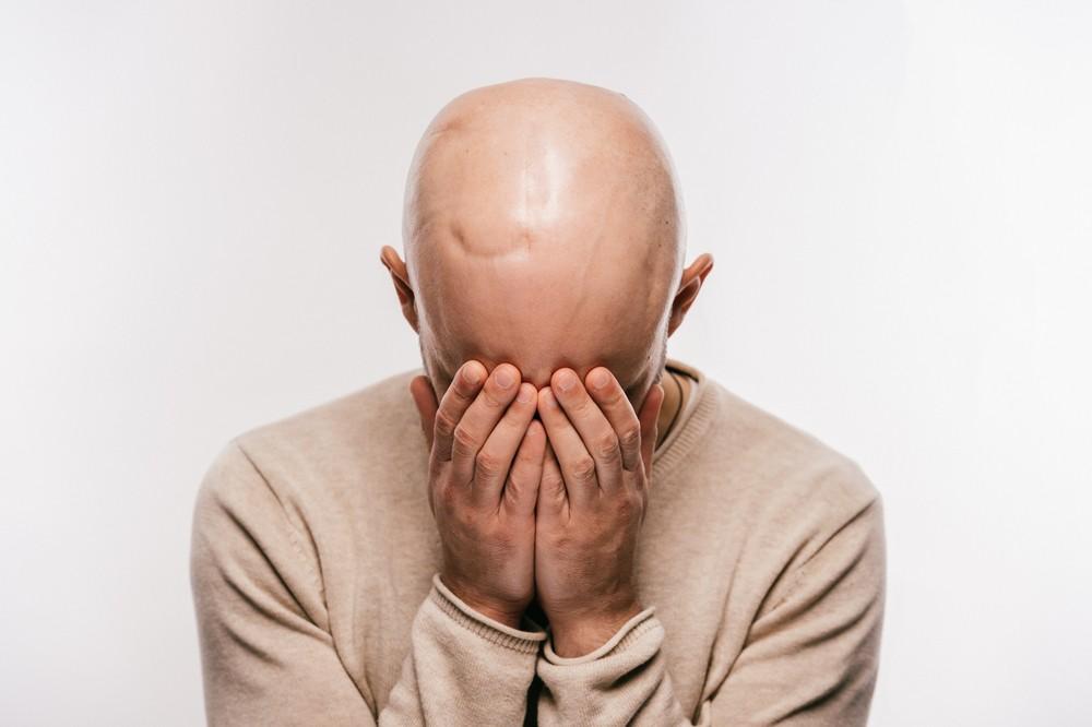 Волосы при лечении рака можно сохранить