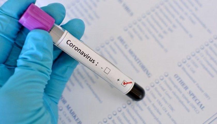 У Биртанова диагностировали коронавирус
