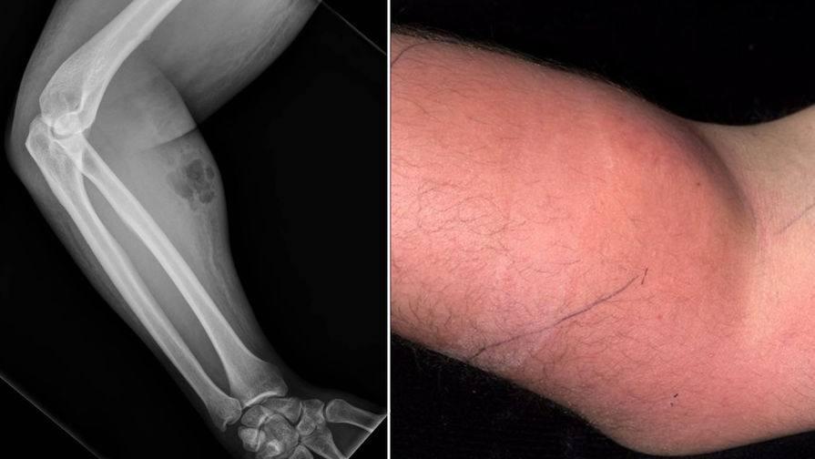 Мужчина лечил себя от болей в спине инъекциями спермы