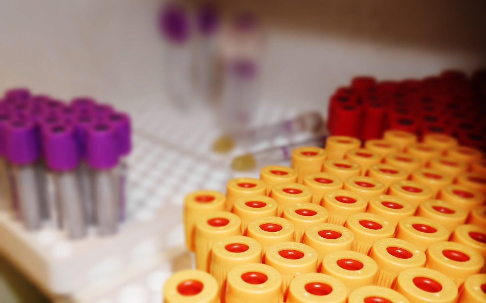 Как определить, сформировался ли иммунитет после прививки от COVID-19